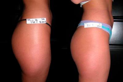инъекционный липолиз фото до и после