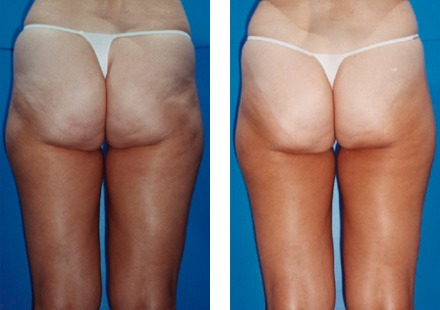 lpg массаж фото до и после