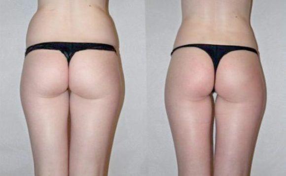 миостимуляция фото до и после